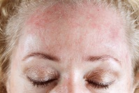 Beyond Skin Rosacea Treatments