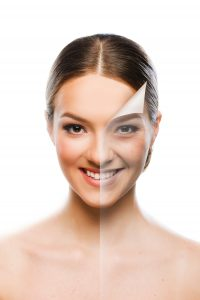 retinol skin renewal